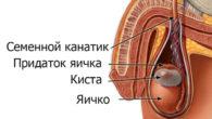 Кисты яичка у мужчин: симптомы и лечение