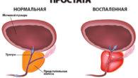 Воспаления простаты: симптомы и лечение