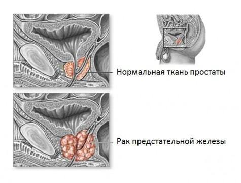 Рак простаты 2 степени продолжительность жизни
