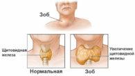 Зоб щитовидной железы: симптомы и лечение народными средствами