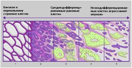 Рак предстательной железы 2 степени продолжительность жизни