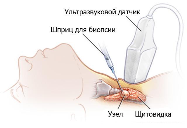 пункция узла щитовидной железы