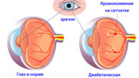 Ретинопатия при сахарном диабете