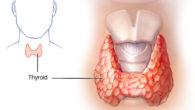Симптомы щитовидки у мужчин