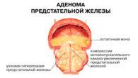 Аденома простаты у мужчин: симптомы и лечение