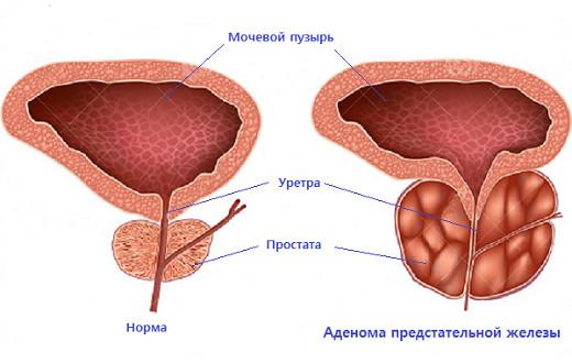 Секс и аденома простата