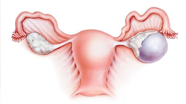 Симптомы причины и лечение кисты желтого тела яичника