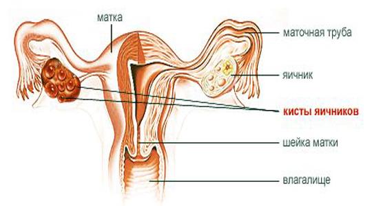 Киста левого яичника лечение народными средствами