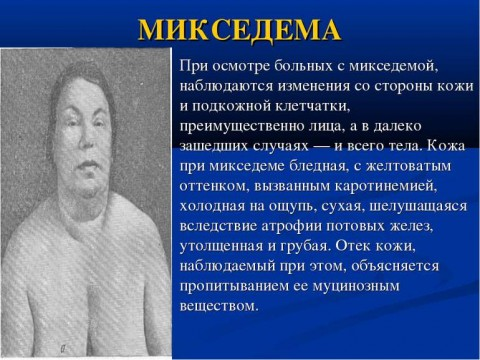 Микседема