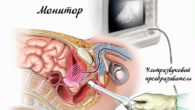 Подготовка к ТРУЗИ предстательной железы