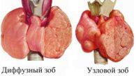 Симптомы и лечение узлового зоба щитовидной железы