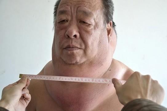 Увеличенная щитовидная железа