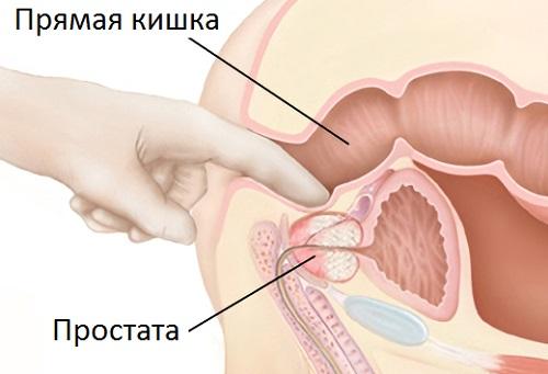Фитотерапия для лечения простатита