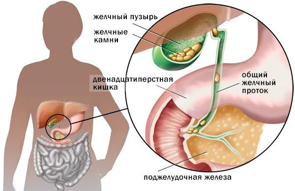 Диета при хроническом холецистите - меню питания и рецепты