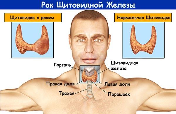 Препараты и лечение глистов