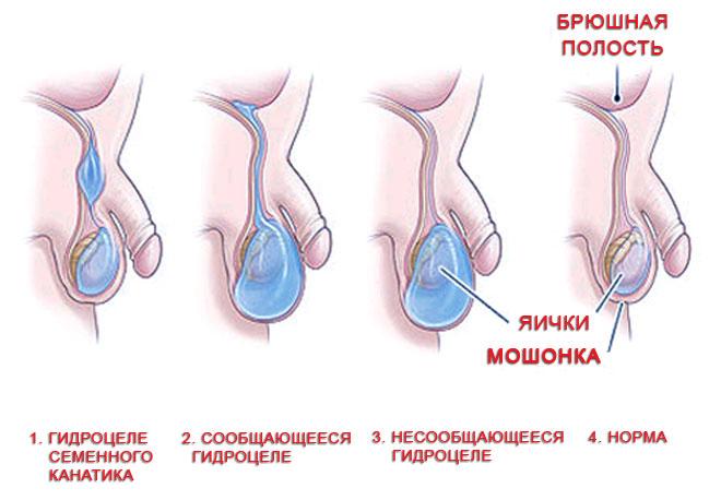 Фото водянки у детей в яичках