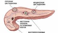 Киста на поджелудочной железе: причины и лечение