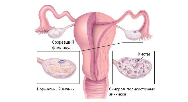 Киста яичника симптомы и лечение признаки разрыва перекрута