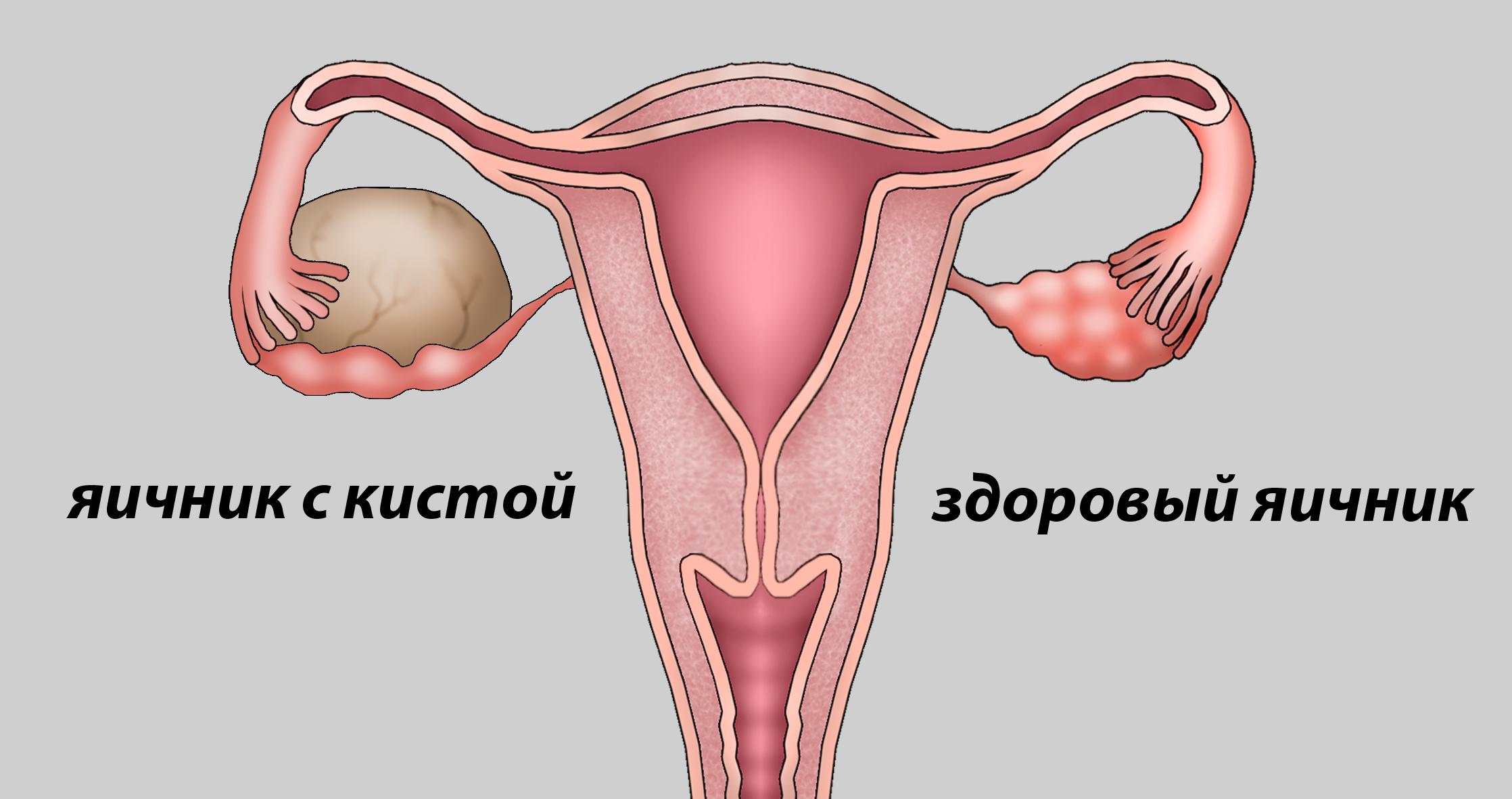 Фолекулярна кста бль при секс