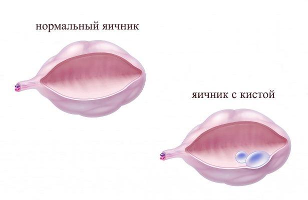 Поликистоз яичников Консультации акушера-гинеколога