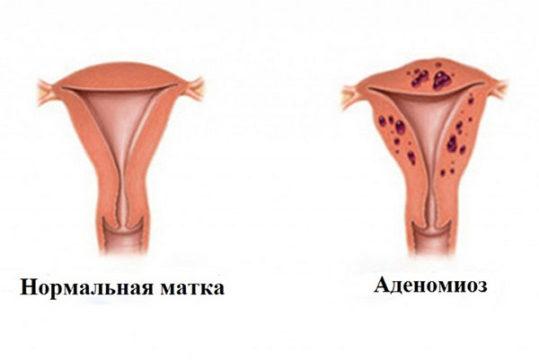 Беременность при аденомиозе матки