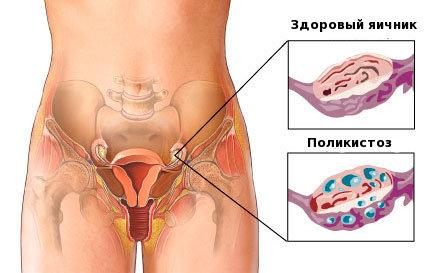 Беременность после удаления кисты яичника