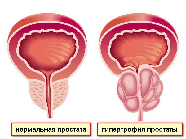 Лечение простатита предстательной железы