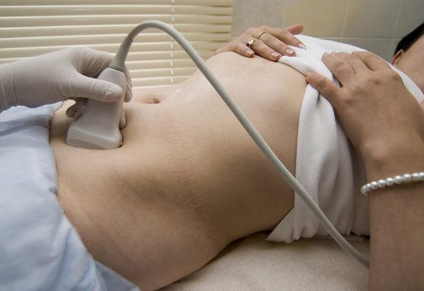 Мультифолликулярные яичники лечение