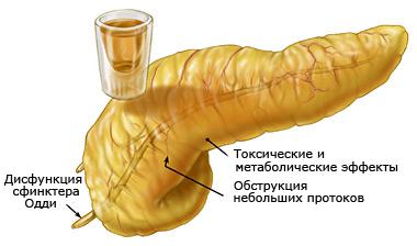 Если боль отдает в спину при панкреатите