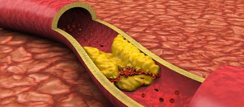 Может ли диабет быть без осложнений