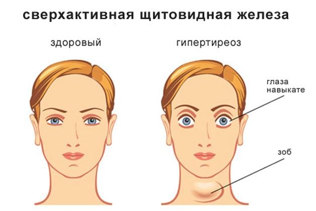 Если у ребенка увеличена щитовидка фото