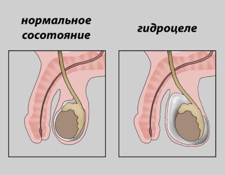Операция при гидроцеле