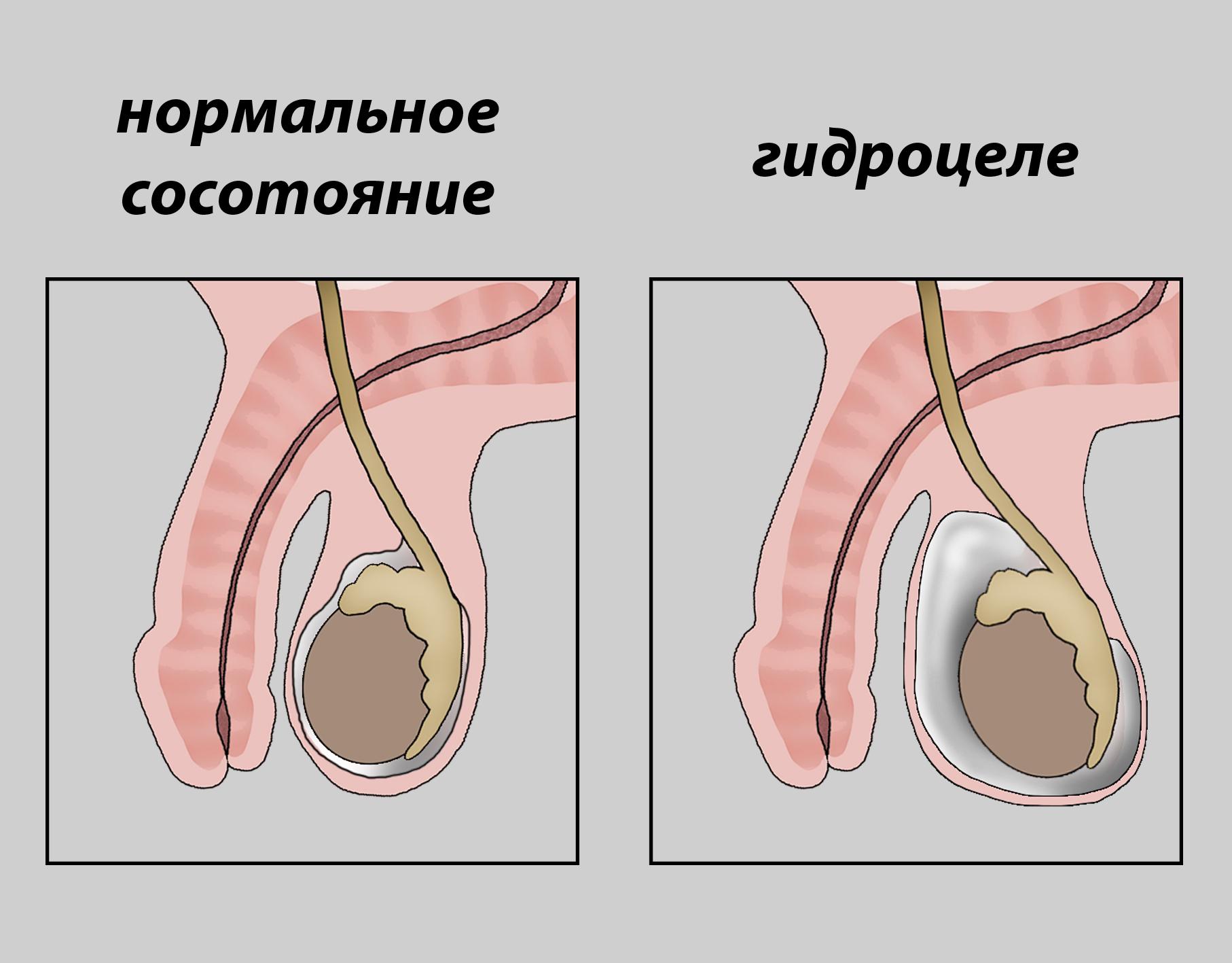 Головные боли при мерцательной аритмии