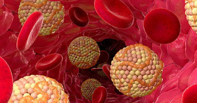 Гипотиреоз и повышенный холестерин