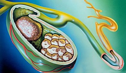 Панкреатит после удаления желчного пузыря