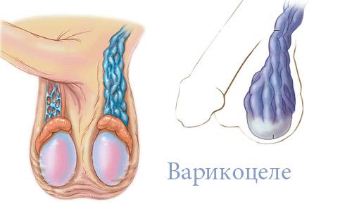 Последствия варикоцеле