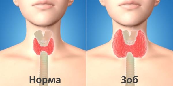 Гипотиреоз у грудничка