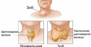 Народное лечение зоба