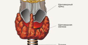 Лечение узлов  на щитовидке народными средствами