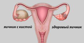 Причины возникновения кисты на яичнике