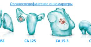Норма СА-125 при кисте яичника