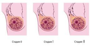 Признаки рака грудной железы