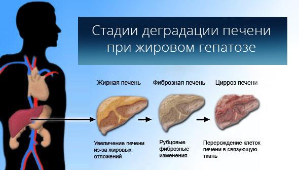 Стадии деградации печени при жировом гепатозе