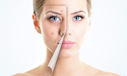 Угревая сыпь на лице