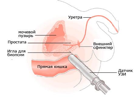 ТРУЗИ предстательной железы