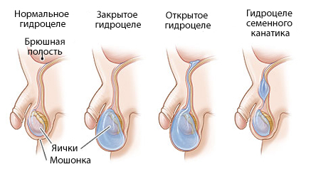 Гидроцеле яичек у мужчин