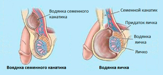 Водянка яичка и семенного канатика